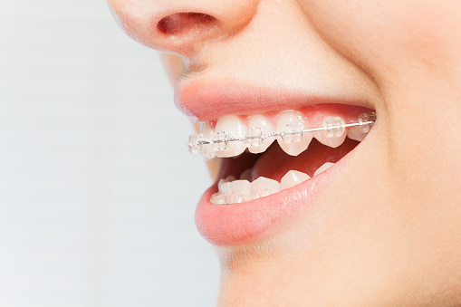 How Your Teeth Will Likely Feel Right After Your Braces Come Off