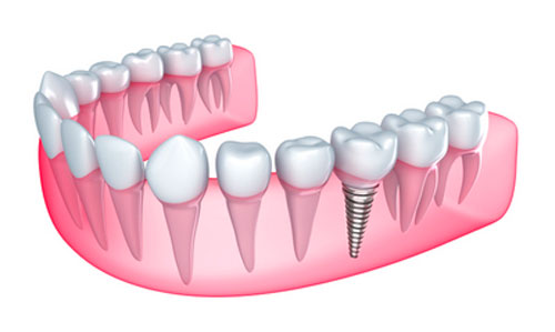 Ways of Caring for Dental Implants Are Different than Natural Teeth